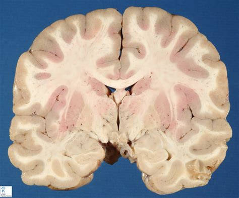 frontal section of brain brain frontal section 3 humpath com human pathology