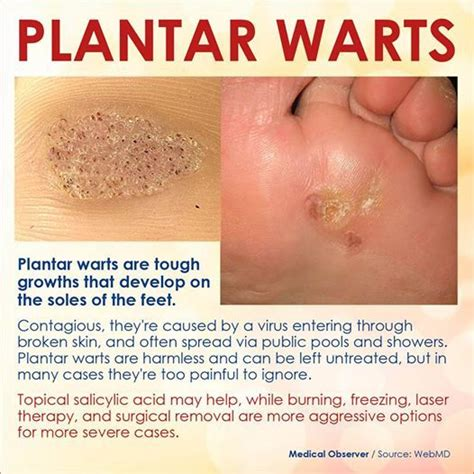 62 best plantar wart information images on pinterest