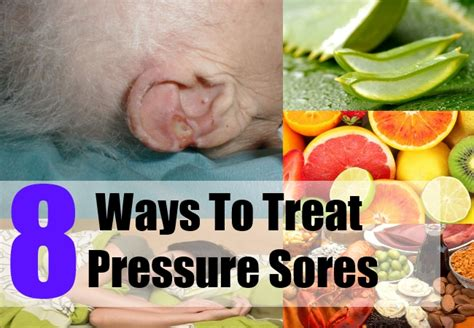 treatment for bed sores 8 home treatment for pressure sores how to treat