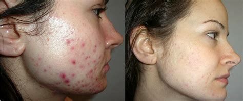 10 glycolic acid peel side effects chemical peel risks types and side effects digest ground