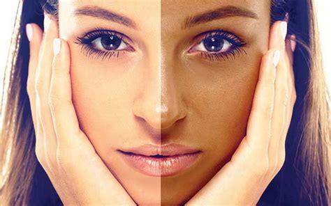 Flek Masker Pigment Wajah cara menghilangkan kulit belang di wajah archives flek hitam