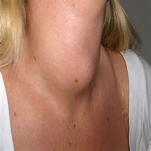 alimentazione giusta nella tiroidite di hashimoto tiroide e alimentazione gli alimenti gozzigeni o
