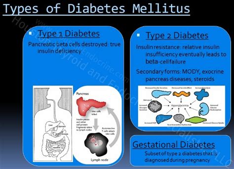 diabetes the real cause and the right cure books causes of diabetes mellitus houston thyroid and