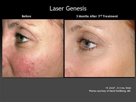 laser genesis plastic surgery hub