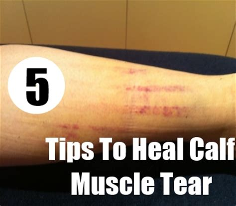 freehand calf muscle skin tear the gallery for gt gastrocnemius tear bruising