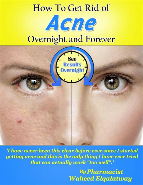 get rid of acne overnight and forever april 2012