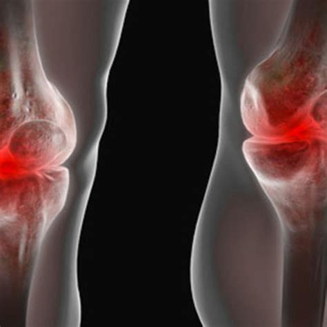Planters Cyst by Baker S Cyst The Knee Causes Symptoms Diagnosis