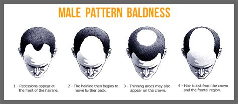 is hair loss pattern related to body mass index why men lose hair and what steps can be taken to prevent