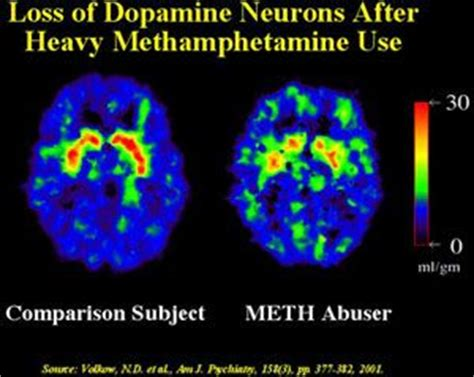 Can Detox Cause Brain Damage by 84 Best Addiction Images On Anxiety