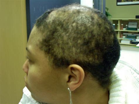 hair salons for black females with alopecia in chicago l or 233 al faces class action lawsuit by black women perm