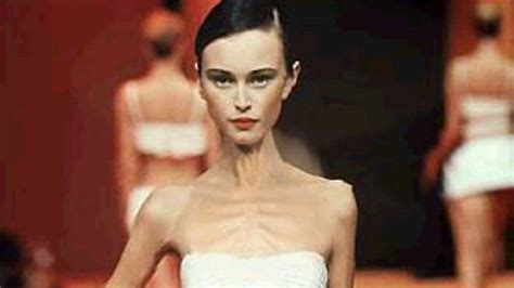 anorexic models that died the that will kill you mcmoments