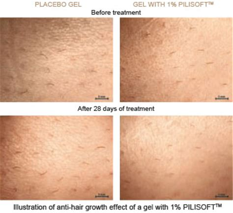 how long does it take for your leg hairs to grow back stop grow hair growth inhibitor
