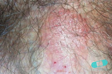 psoriasis light therapy near me online dermatology psoriasis