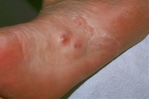 Planters Fibromatosis by Plantar Fibroma Symptoms Causes Treatment Pictures