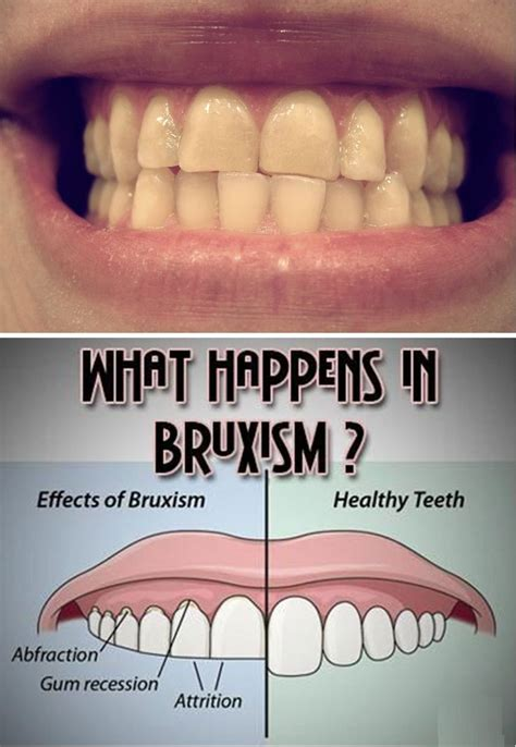 bruxism grinding  teeth  called bruxism sleep apnea