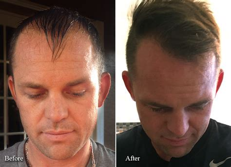 hair transplant before and after fue hair transplant patient before and after limmer hair