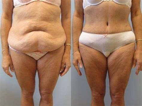 liposuction during c section hernia c section scar uterine incisions used during c