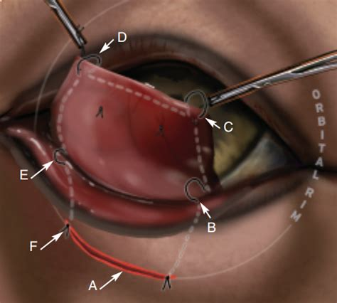 cherry eye treatment cherry eye disease cause treatment prevention veterinary hub