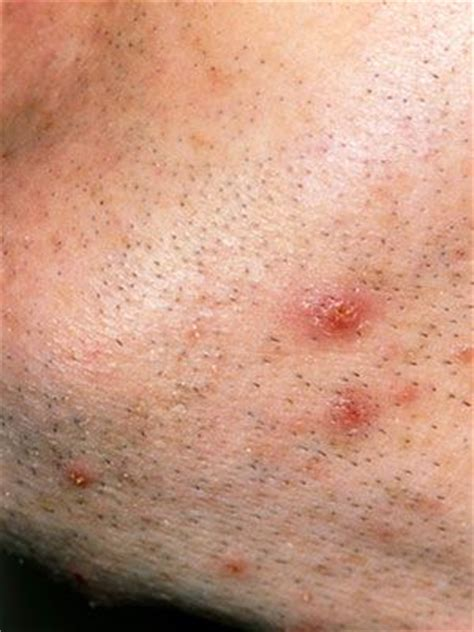 pictures of ingrown hair bumps on private area ingrown hair bumps on private area for men search