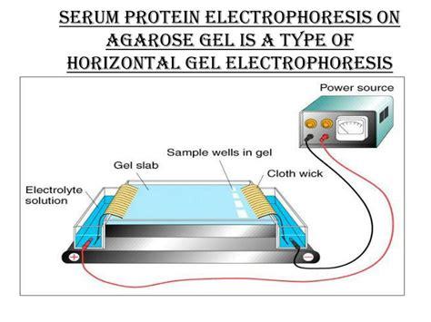u protein electrophoresis ppt serum electrophoresis and immunofixation june 2013