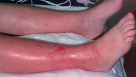 best antibiotics for cellulitis cellulitis pictures to pin on pinsdaddy