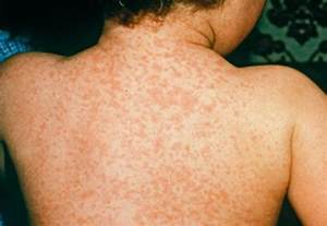 Meningitis rash pictures symptoms treatment causes