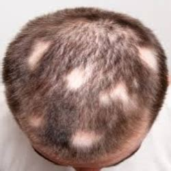 Types Of Hair Loss Diseases by Cure For Alopecia Useful Remedy For