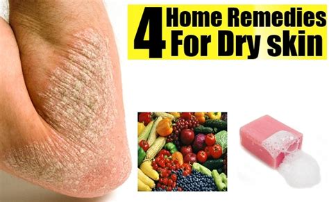 home remedies for skin how to get rid of skin