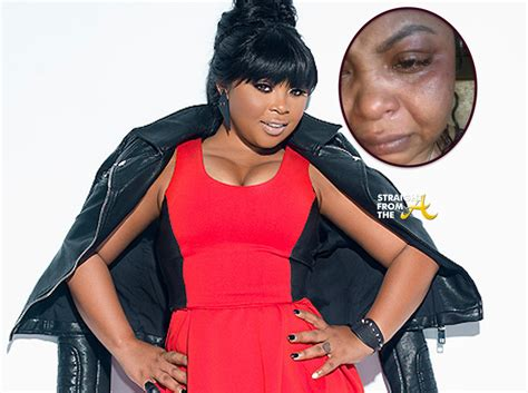 shekinah jo wikipedia shekinah from ti and tiny before surgery the story behind