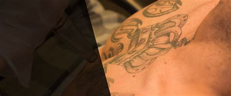 home tattoo removal near me laser tattoo removal