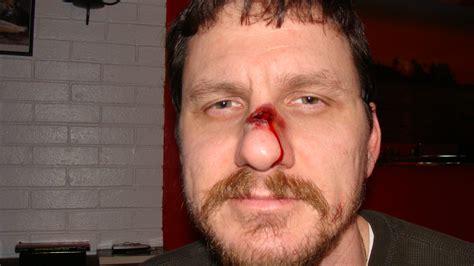 cracked nose broken nose welcome to zombiekid