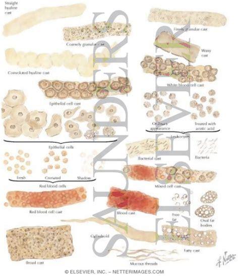 urine sedimento pin atlas de sedimento urinario on