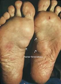 plantar fibromatosis causes and treatment options