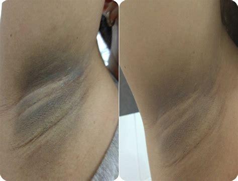 Gluta C Underarm iambrigitte product review gluta c underarm and