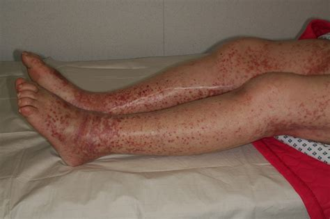 imagenes de manchas rojas en los pies manchitas rojas en las piernas gs zone