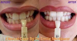 home kit teeth whitening