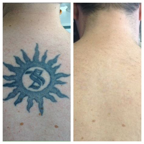 tattoo removal inc tattoo removal before and after photos at disappearing inc
