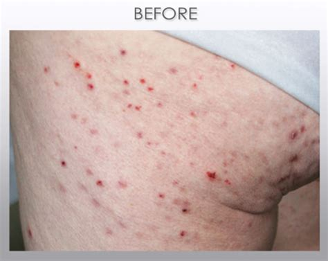 rash on buttocks after c section dr scabies case studies before and after best scabies