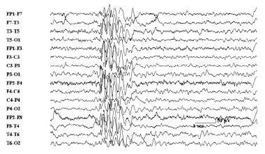 eeg pattern recognition quiz eeg in common epilepsy syndromes role of eeg in epilepsy
