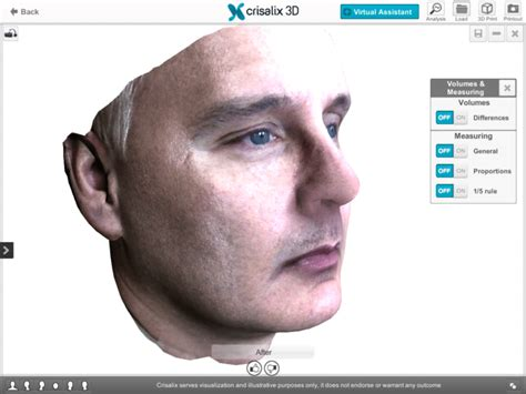 now offering crisalex 3d imaging cincinnati oh