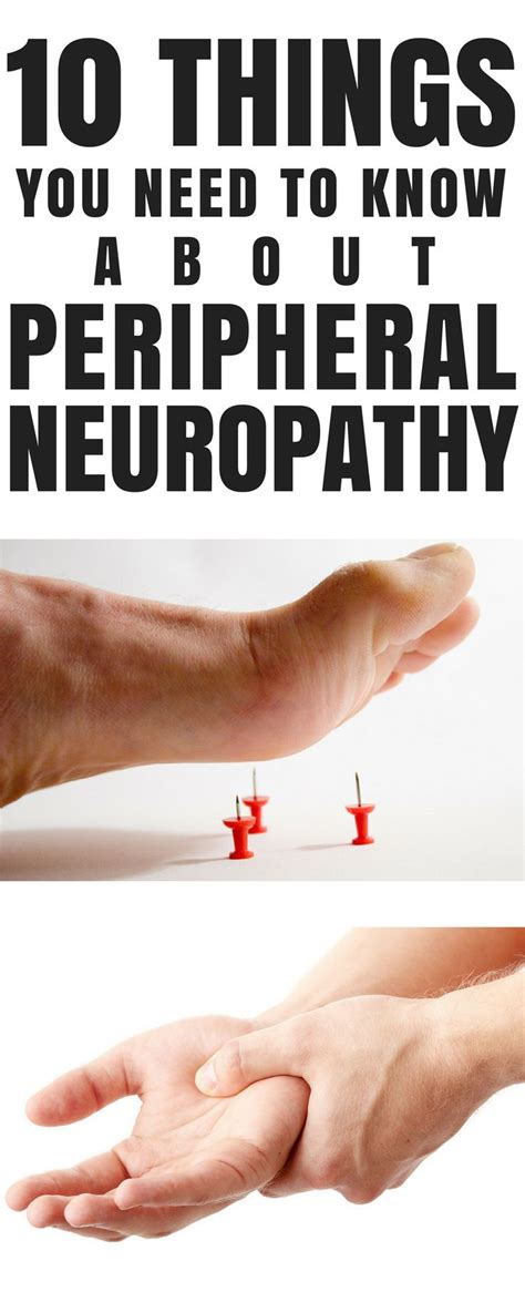 10 things you need to know about the 2017 honda accord 17 best images about peripheral neuropathy treatment on