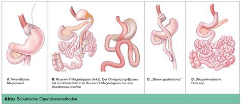 innere hernie update adipositaschirurgie universum innere medizin