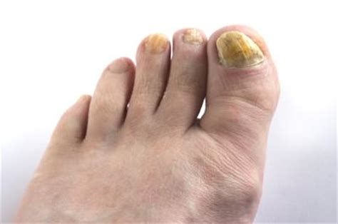 Fußnägel Lackieren Bei Nagelpilz by How To Get Rid Of Yellow Toenails Nail Fungus Treatment