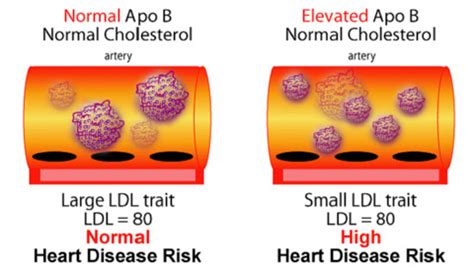 q risk for heart disease the nmr and your risk of heart disease drjockers com