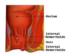 itchy blood mucus