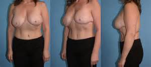 breast reconstruction following mastectomy double mastectomy with immediate reconstruction before and