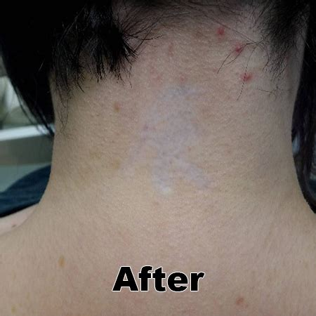 tattoo removal on neck gallery removal artisan laser sking care center