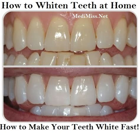how to whiten teeth at home how to make your teeth white