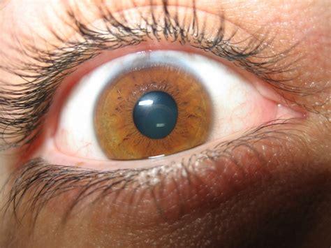 imagenes de ojos con orzuelos reflexiones sobre el glaucoma ii