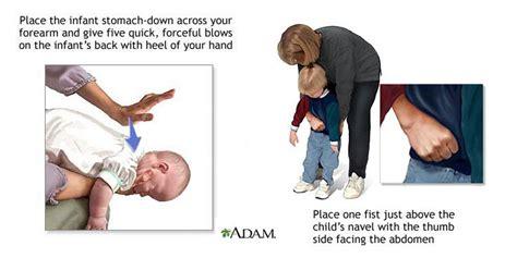 heimlich maneuver ode to the heimlich maneuver bub society